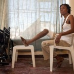 Fabienne Jean sits at home with her prosthetic leg propped up on a coffee table. -Nick Kozak